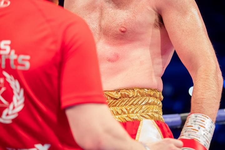 david-price-ali-fight (6)