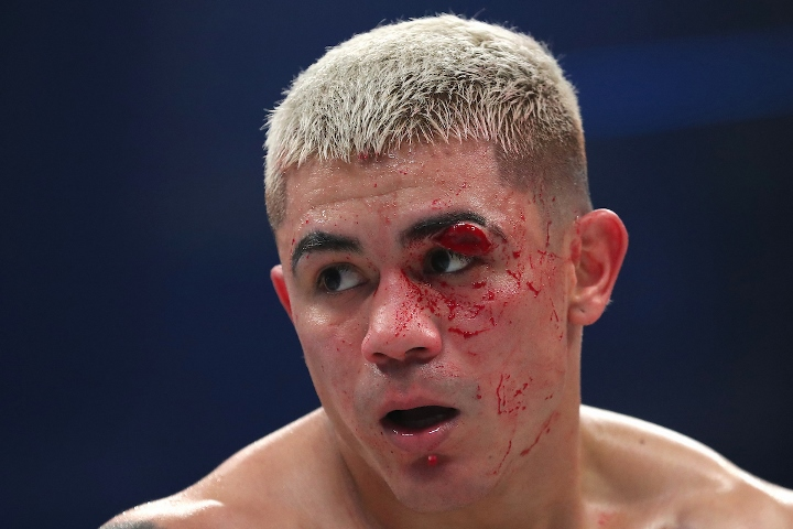 Diaz Won T Rush Rematch With Tevin Farmer Due To Terrible Cut Boxing News