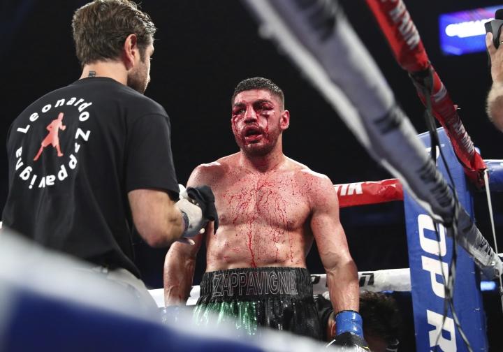 saucedo-lenny-z-fight (1)_1