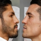 Linares-Crolla II: A Most Intriguing Rematch